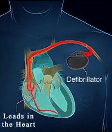 Lake Charles Defibrillator (ICD) Placement